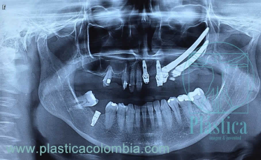 Implantes dentales cigomaticos