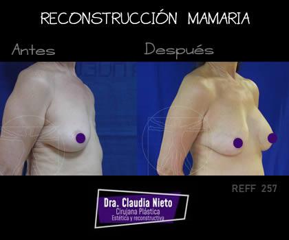 Foto Reconstrucción Mamaria