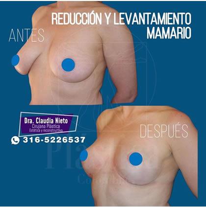 Reducción y levantamiento senos