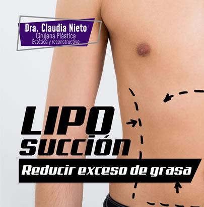 reducir exceso grasa