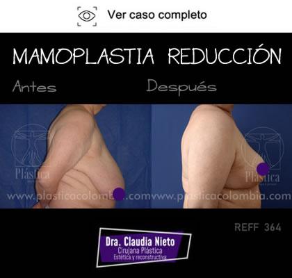 Reduccion mamaria antes y despues