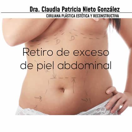 retrio piel abdominal