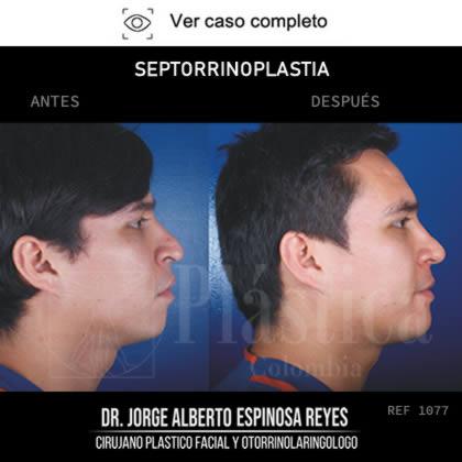 Foto Rinoplastia Resultado