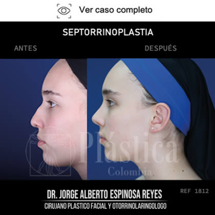 Foto Septorrinoplastia