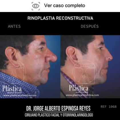 Rinoplastia Reconstructiva Resultado