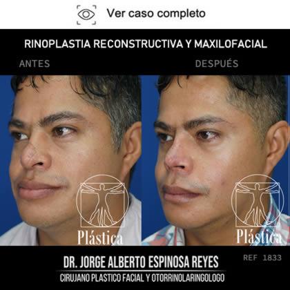 Rinoplastia Reconstructiva Antes y Después