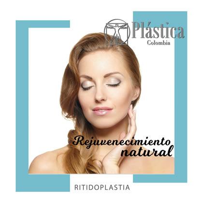 ritidoplastia natural
