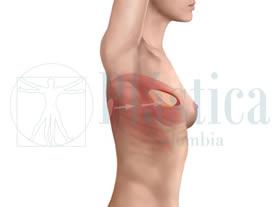 senos-mastectomia