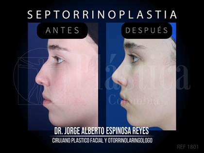 Foto Septorrinoplastia