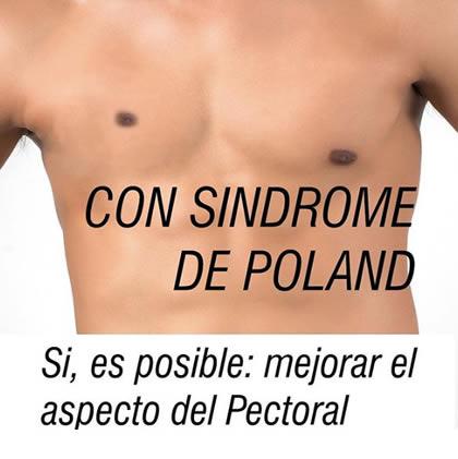 sindrome poland corrección