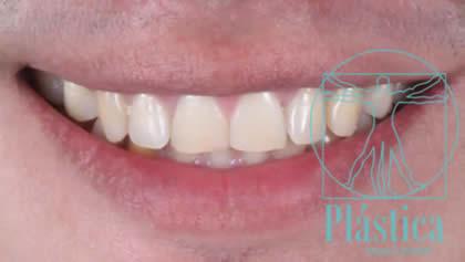 Fotografía Blanquemiento Dental