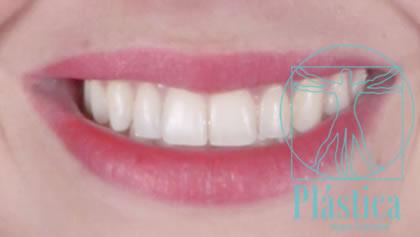Foto de Caso de Blanqueamiento Dental