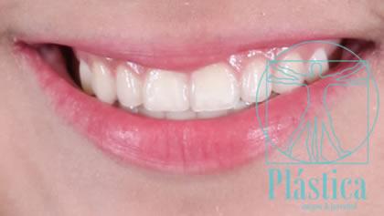 Fotografía Blanqueamiento dientes
