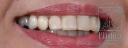 Fotografía Caso Cambio de prótesis dental