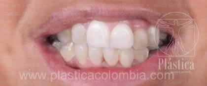 Fotografía paciente candidato para ortodoncia