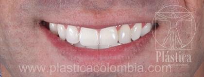Fotografía Diseño Sonrisa más Ortodoncia