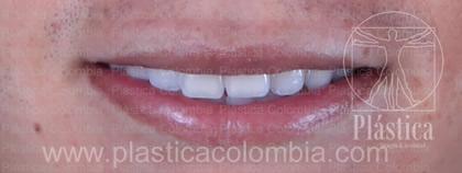 Fotografía Diseño Sonrisa con Ortodoncia