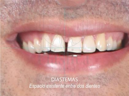 Fotografía Diastema