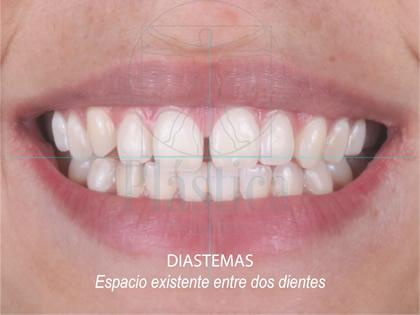 Fotografía Diastema con ortodoncia