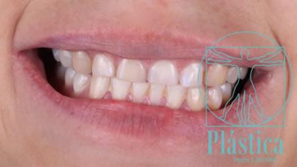Fotografía Diseño de Sonrisa con Rehabilitación Oral