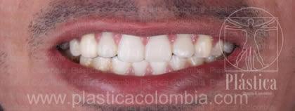 Fotografia Paciente con Gingivitis