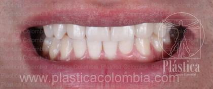 Fotografía Paciente para ortodoncia