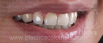 Fotografía Ortodoncia y Blanqueamiento