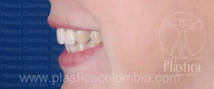Fotografía Pigmentación dental
