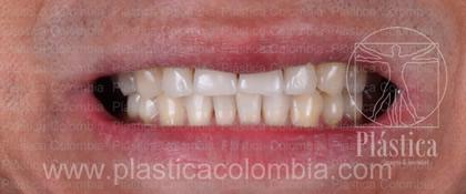 Foto Rehablitación Dental