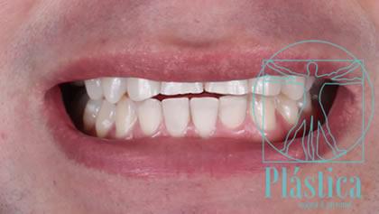 Fotografía de Rehabilitación Oral para Ortodoncia