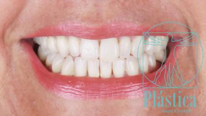 Fotografía de Rehabilitación Oral para Diseño de Sonrisa