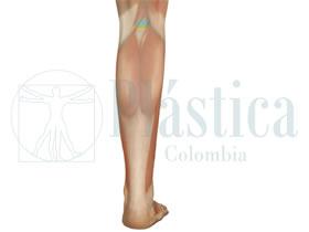 Técnica Aumento grosor pierna