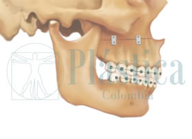 Técnica Quirúrgica Cirugia Mandíbula