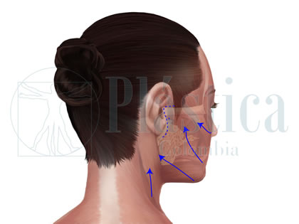 Técnica Ritidoplastia