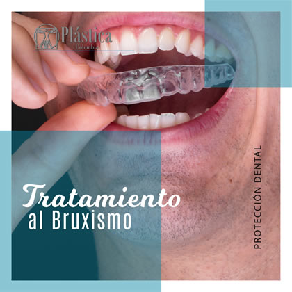 Tratamiento Bruxismo