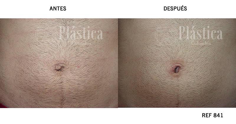Umbilicoplastia Caso