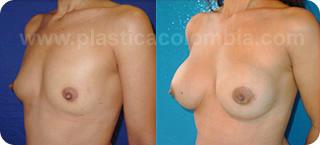 Natrelle 10 fotos de implantes mamarios