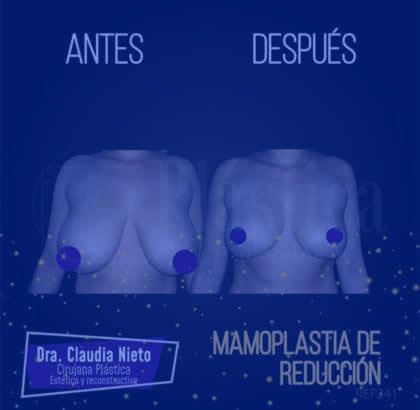 Mamoplastia reductiva 5