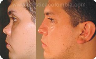 casos reconstrucción nariz