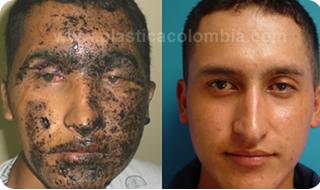 Fotos Antes Y Despu 233 S Dermoabrasi 243 N Plastica Colombia