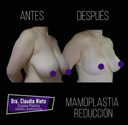Mamoplastia reductiva 9