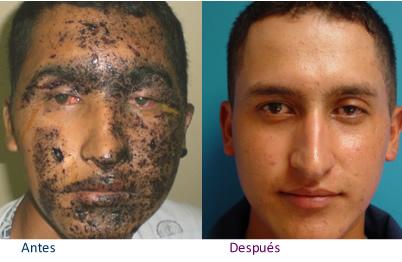 Metronidazol al acné el esquema
