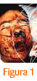 Cirujano Rinoplastia