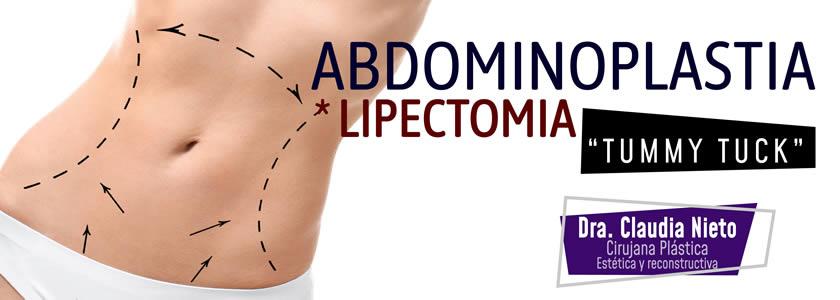 Banner abdominoplastia