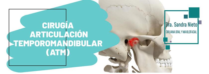 Banner articulación temporomandibular