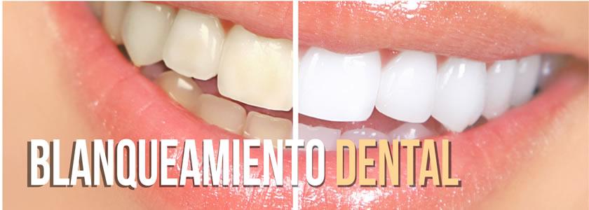 Banner Blanqueamiento Dental