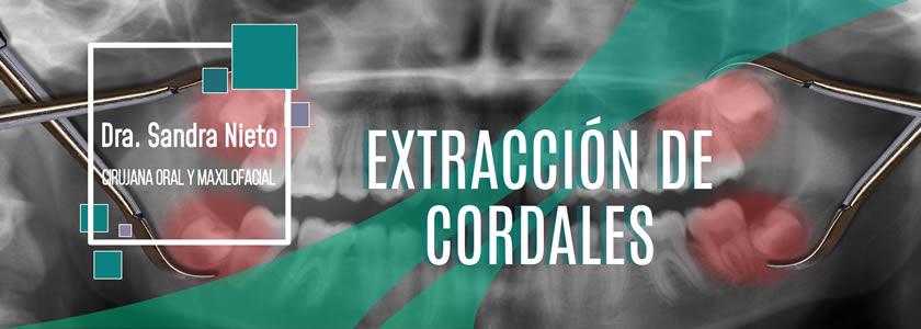 Banner Extracción Cordales