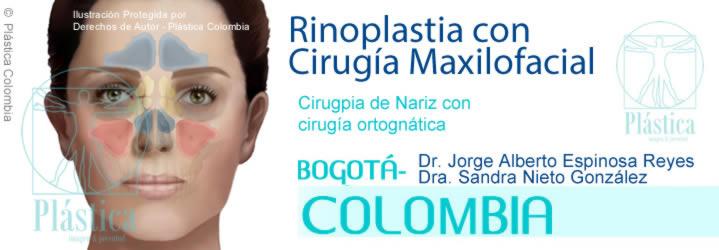 Cirugía Maxilofacial/Ortognática con Rinoplastia