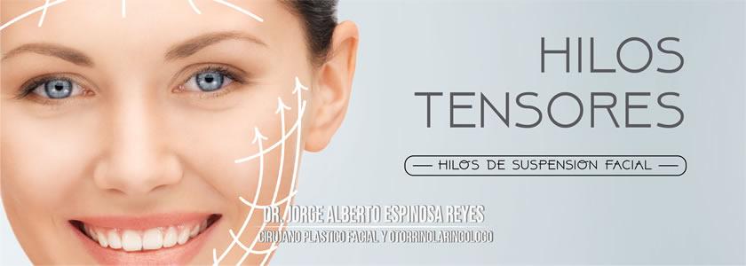 Cirugía de suspensión facial - HILOS RUSOS