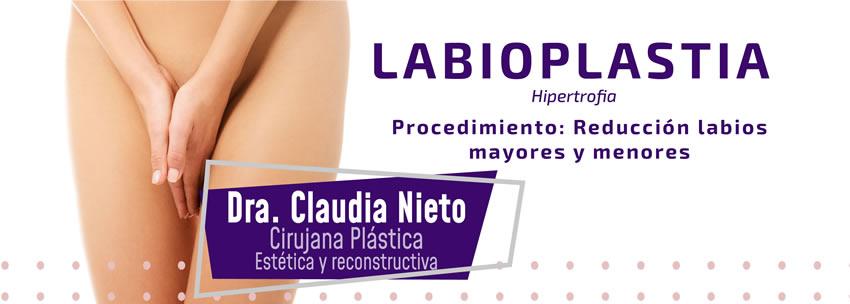 Hipertrofia labios genitales